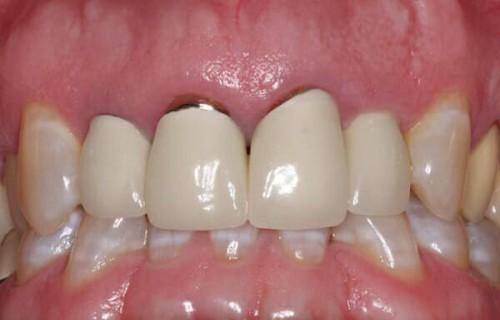 Bọc răng sứ bị hở