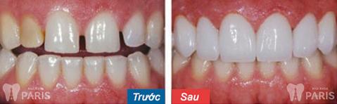 Dịch vụ bọc răng sứ 1