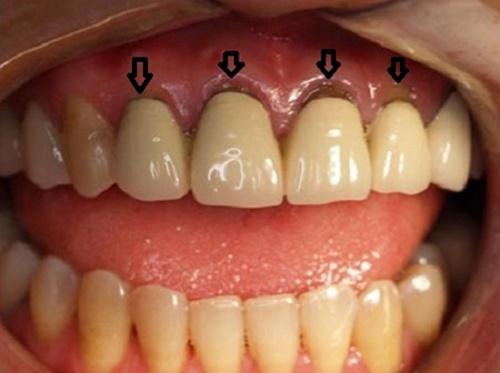 Bọc răng sứ bị hở chân răng 1