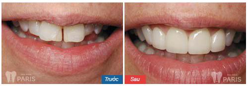5 Tiêu chí đánh giá địa chỉ làm răng Direct Veneer ở đâu tốt? 8