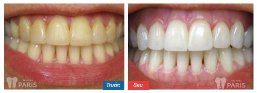 5 Tiêu chí đánh giá địa chỉ làm răng Direct Veneer ở đâu tốt? 9