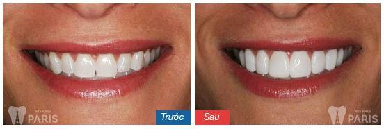 5 Tiêu chí đánh giá địa chỉ làm răng Direct Veneer ở đâu tốt? 10