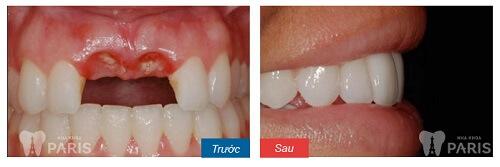 Làm cầu răng sứ 7