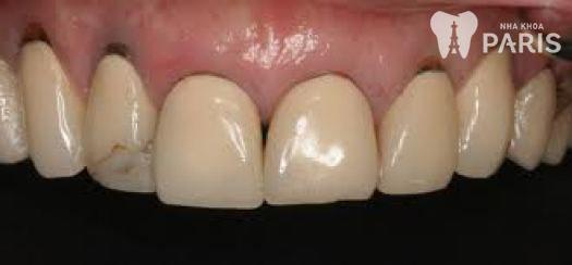 Dấu hiệu răng sứ bị hở 1