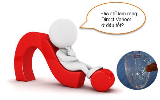 5 Tiêu chí đánh giá địa chỉ làm răng Direct Veneer ở đâu tốt? 1