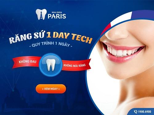 5 Tiêu chí đánh giá địa chỉ làm răng Direct Veneer ở đâu tốt? 3