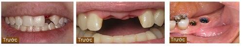 Làm cầu răng sứ được thực hiện thế nào tại Nha khoa KIM 1