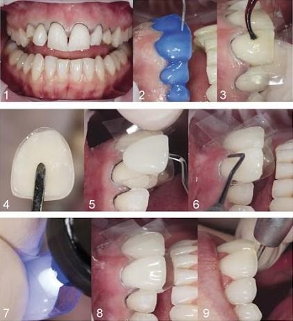 Quy trình làm răng 1 Day Tech 1