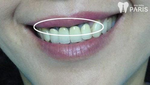 Răng sứ bị đen viền nướu 1