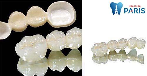 Răng sứ Titan sử dụng được bao lâu 1