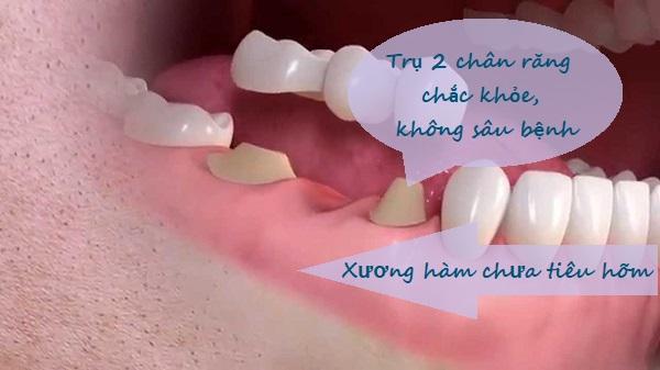 Làm cầu răng sứ giá bao nhiêu? Bảng giá làm cầu răng sứ Ưu đãi 2