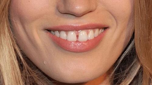 Cách khắc phục hai răng cửa bị hở có ĐỘ BỀN - THẨM MỸ cao nhất 1