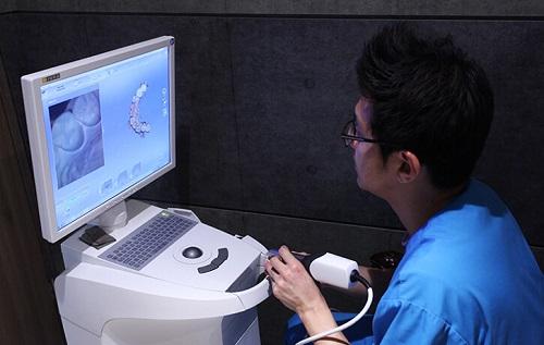 3 Công nghệ làm răng khểnh giả An Toàn nhất hiện nay ? 3