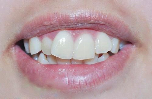 Răng cửa bị lệch 1