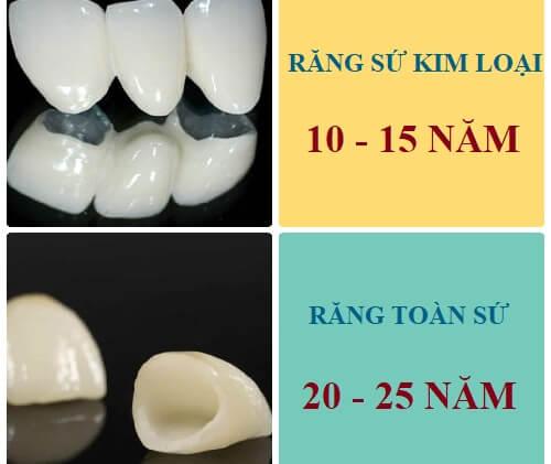 2 Yếu tố để độ bền của răng sứ thẩm mỹ hiệu quả nhất