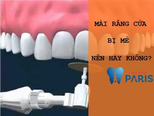 [Giải đáp thắc mắc] Mài răng cửa bị mẻ có được không? 1