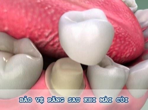 [Giải đáp thắc mắc] Mài răng cửa bị mẻ có được không? 2