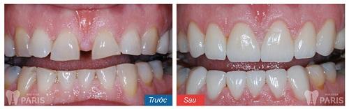 bọc răng sứ Cercon 7