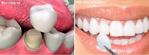 Phương pháp làm răng sứ 1