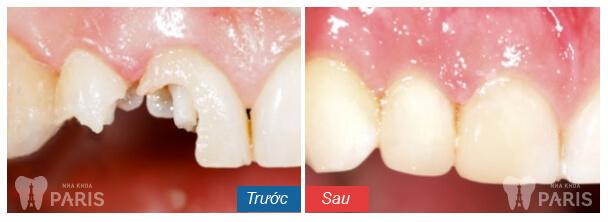 Vì sao răng bị sứt mẻ? Cách khắc phục HIỆU QUẢ nhất là gì? 5