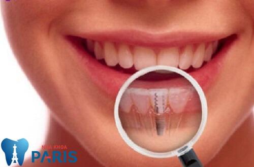 Răng cửa bị lung lay phải làm sao? Chuyên gia nha khoa giải đáp 2