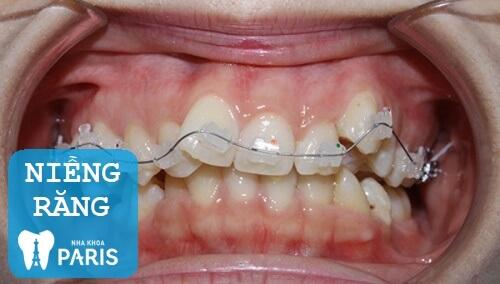 Ưu - nhược điểm của 3 phương pháp chỉnh răng cửa lệch 1