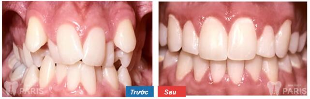 Ưu - nhược điểm của 3 phương pháp chỉnh răng cửa lệch 2