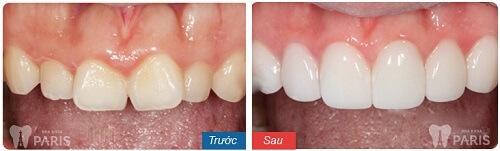 Ưu - nhược điểm của 3 phương pháp chỉnh răng cửa lệch 7