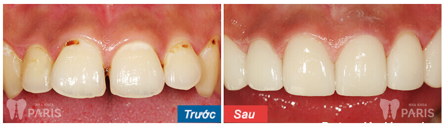 Ưu - nhược điểm của 3 phương pháp chỉnh răng cửa lệch 8