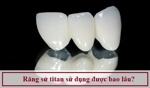 Giải đáp thắc mắc: Răng sứ titan sử dụng được bao lâu?