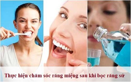 Tuổi thọ của răng sứ Titan sử dụng được bao lâu? Chuyên gia tư vấn 2