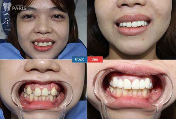 Chụp răng sứ Nano Shining 5s Bền - Đẹp - Nhanh Chóng - Giá Tốt 6