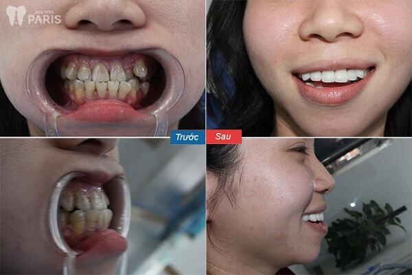 Chụp răng sứ Nano Shining 5s Bền - Đẹp - Nhanh Chóng - Giá Tốt 5