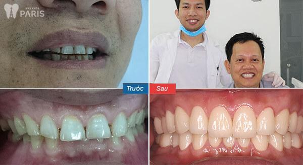 Chụp răng sứ Nano Shining 5s Bền - Đẹp - Nhanh Chóng - Giá Tốt 7