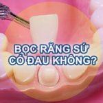Bọc răng sứ CÓ ĐAU KHÔNG? – Chuyên gia nha khoa giải đáp