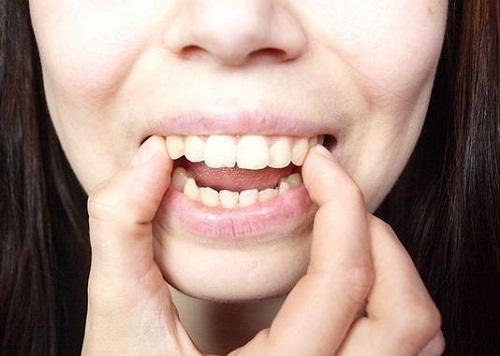 Cách làm răng hết hô VĨNH VIỄN tại nhà hiệu quả chỉ sau 1 tuần 2