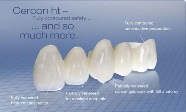 Có thể bạn chưa biết răng sứ Cercon HT và Cercon khác nhau 1