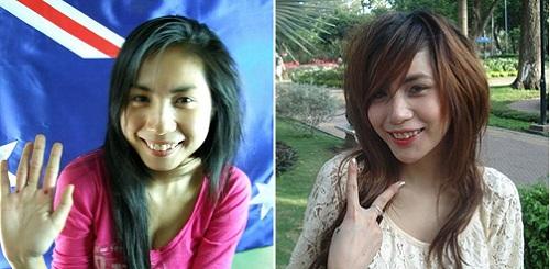 Làm răng sứ thẩm mỹ - Trào lưu NỞ RỘ không chỉ trong Showbiz Việt 3
