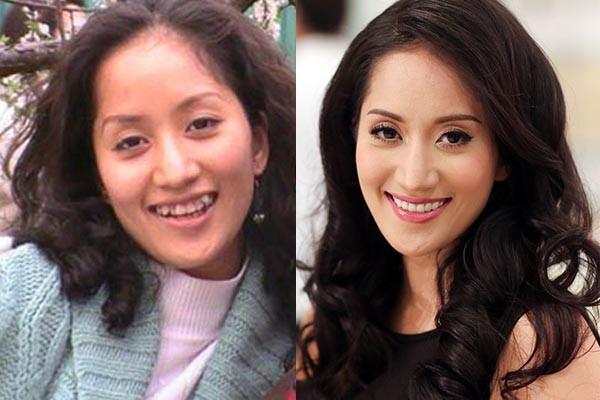 Làm răng sứ thẩm mỹ - Trào lưu NỞ RỘ không chỉ trong Showbiz Việt 8