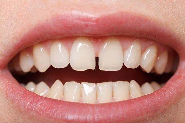 Tướng người răng thưa có tốt không theo tử vi?
