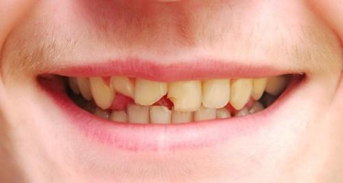 Vì sao răng bị sứt mẻ? Cách khắc phục HIỆU QUẢ nhất là gì? 1