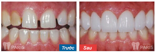 Răng cửa thưa tướng số xấu hay tốt? Làm sao để khắc phục? 4