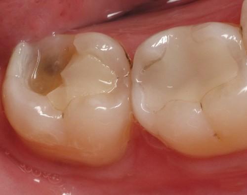 Sứt răng hàm có ảnh hưởng như thế nào? Cách khắc phục Triệt Để 1