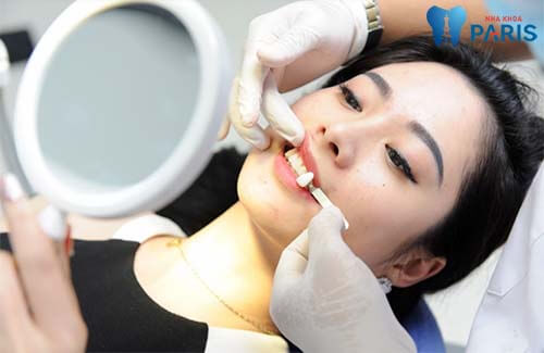 Cách chữa răng vẩu Hiệu Quả - Nhanh Chóng chỉ sau 2 lần khám 3