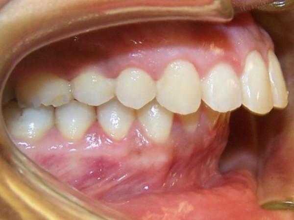 Cách chữa răng vẩu Hiệu Quả - Nhanh Chóng chỉ sau 2 lần khám 1