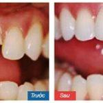 Lắp răng tạm khi bọc sứ có ăn bình thường được không?
