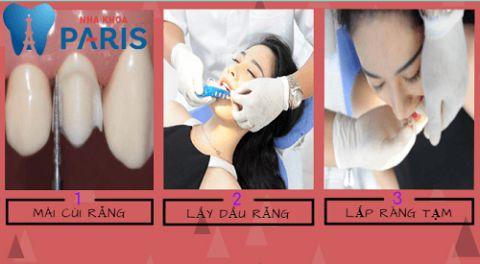 Tìm hiểu chi tiết về quy trình bọc răng sứ đúng chuẩn 1