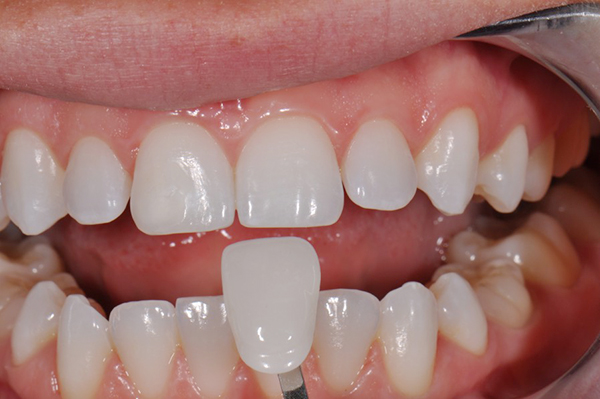 Bọc răng sứ hai răng cửa có thực hiện được không?