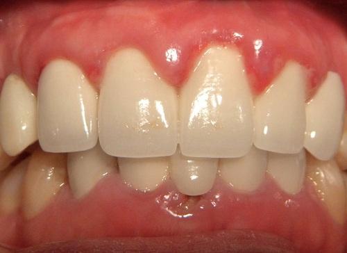 Bọc răng sứ bị viêm lợi 1