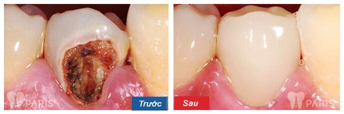 Giải đáp: Bọc răng sứ cho răng hàm bị sâu có bền hay không? 2